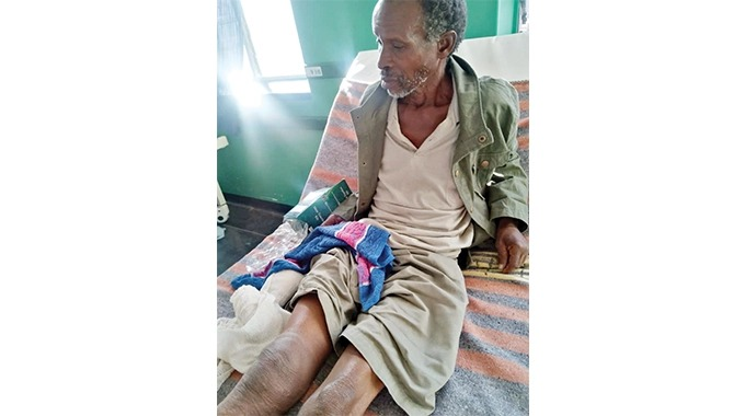 Man(74) Drags Self On His Buttocks For 8 Hours After Elephant Attack