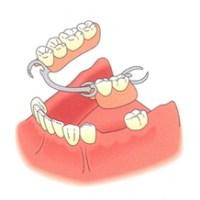 Options in replacing missing teeth