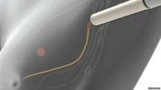 Los nódulos del sistema linfático son el primer lugar donde un tumor que se propaga puede detectarse.