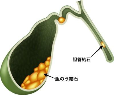 胆のう胆管結石
