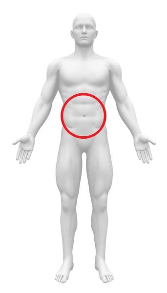 急性腹症 異所性妊娠 腹部全体痛