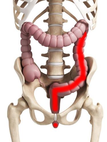 粘血便 潰瘍性大腸炎 左側大腸炎型