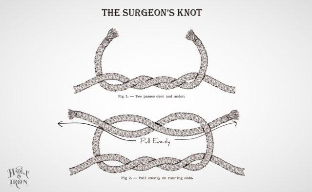 The-Surgeons-Knot-01_Fotor.jpg