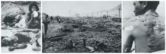 The photos shows the immense suffering inflicted on the civilian population at Hiroshima