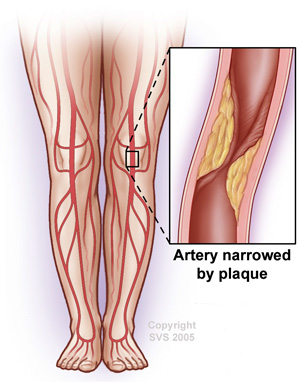 Legs Peripheral Artery Disease