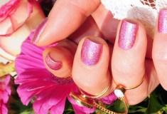 łuszczyca paznokci to choroba o podłożu genetycznym