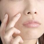 ニキビを簡単に治す!生にんにくの効果。ガーリック療法が話題!おすすめのニンニクサプリも紹介