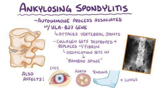 Ankylosing spondylitis - Osmosis