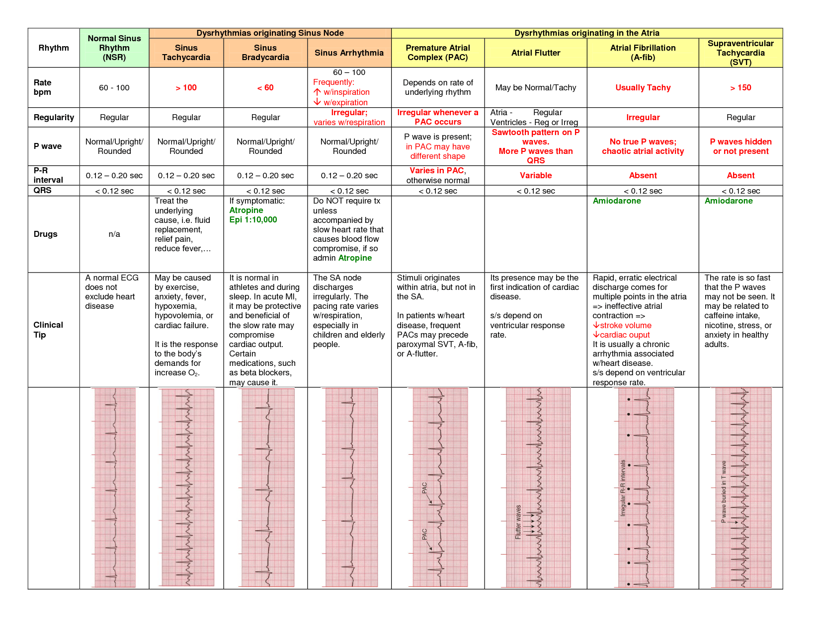 Dysrhythmias And Contraction Of The Heart On Meducation