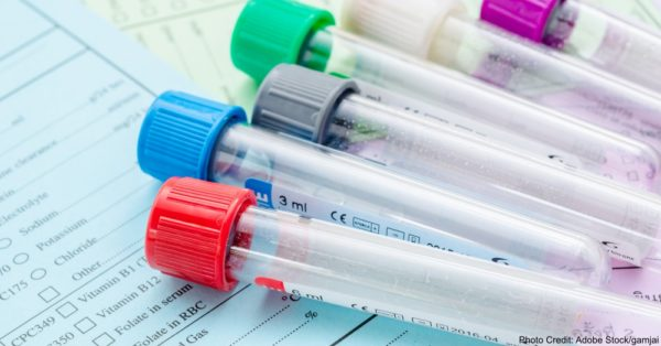 Many empty tube blod for blood test screening