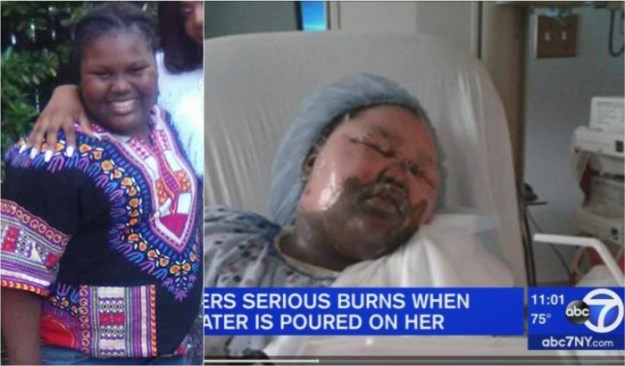 Girl throws boiling water on 11 year old during sleepover new york Jamoneisha Merritt
