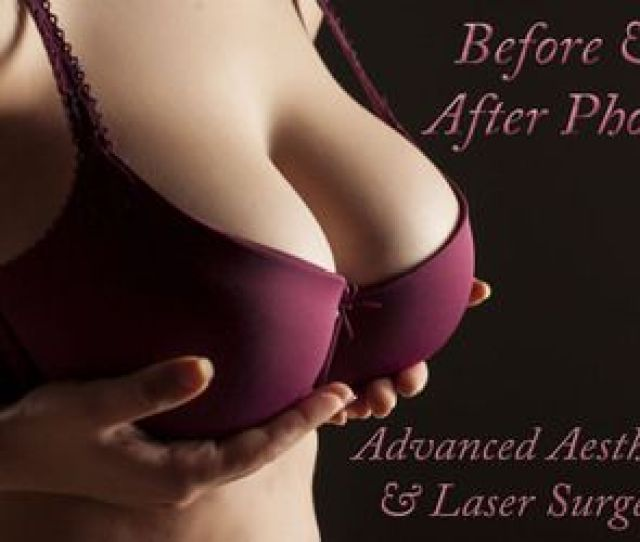 Change In Bra Size Following Breast Implant Surgery