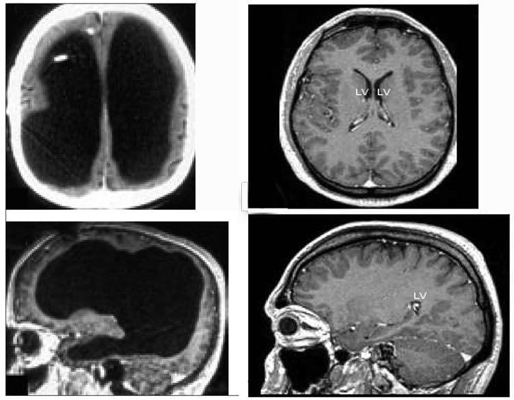 exploraciones del cerebro del hombre con diminuto cerebro