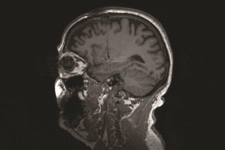 scansione del cervello di pazienti con