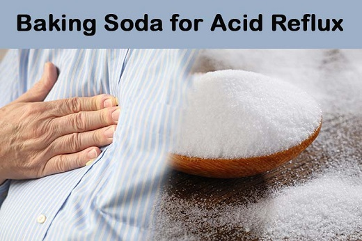 Baking Soda for Acid Reflux