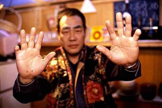 A yakuza member with his fingertips cut off