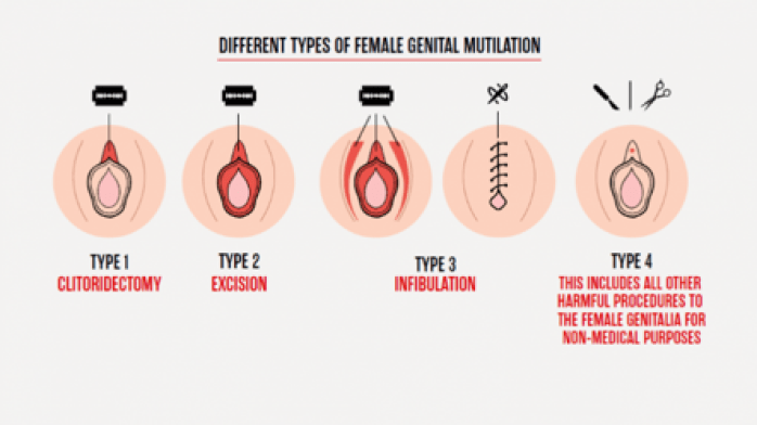 """The image depicts 4 different types of FGM. The image of the first type, clitoridectomy, portrays the removal of clitoris, while the image of the second type, excision, depicts the removal of clitoris and labia minora. The image of the third type, infibulation, depicts the removal of clitoris, labia majora and manora as well as the stitching of vulva to leave only a small gap. Type 4 is described as """"all other harmful procedures to the female genitalia for non-medical purposes."""""""