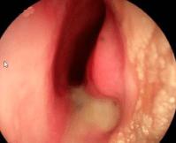 halloween sign epiglottitis