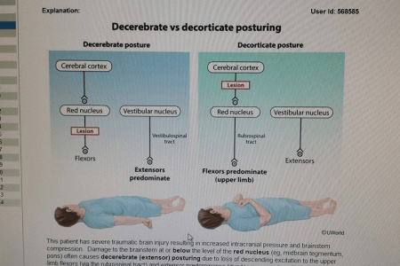 Decorticate And Decerebrate Posturing Pathophysiology     Oh Decor Curtain Decorticate Posturing Neuro Refle Newborn Nursery Stanford Ine Erb S Palsy  Hannah Conway On Twitter Posture