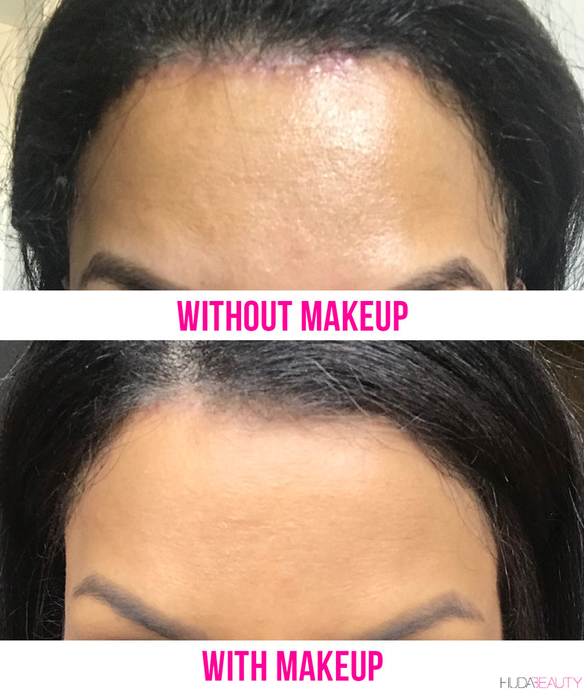 Forehead Reduction Surgery Is A Thing We Did It Blog Huda Beauty