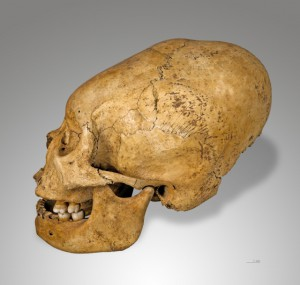 deformed Inca skull