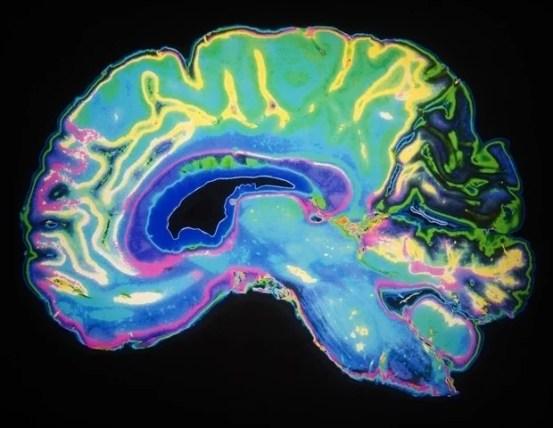 "The maturation of the ""mini-brain"" organoids corresponds to the development of the human brain"