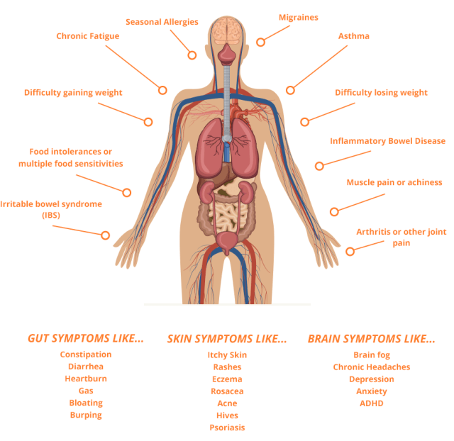lg-body-graphic 3 triggers of a leaky gut