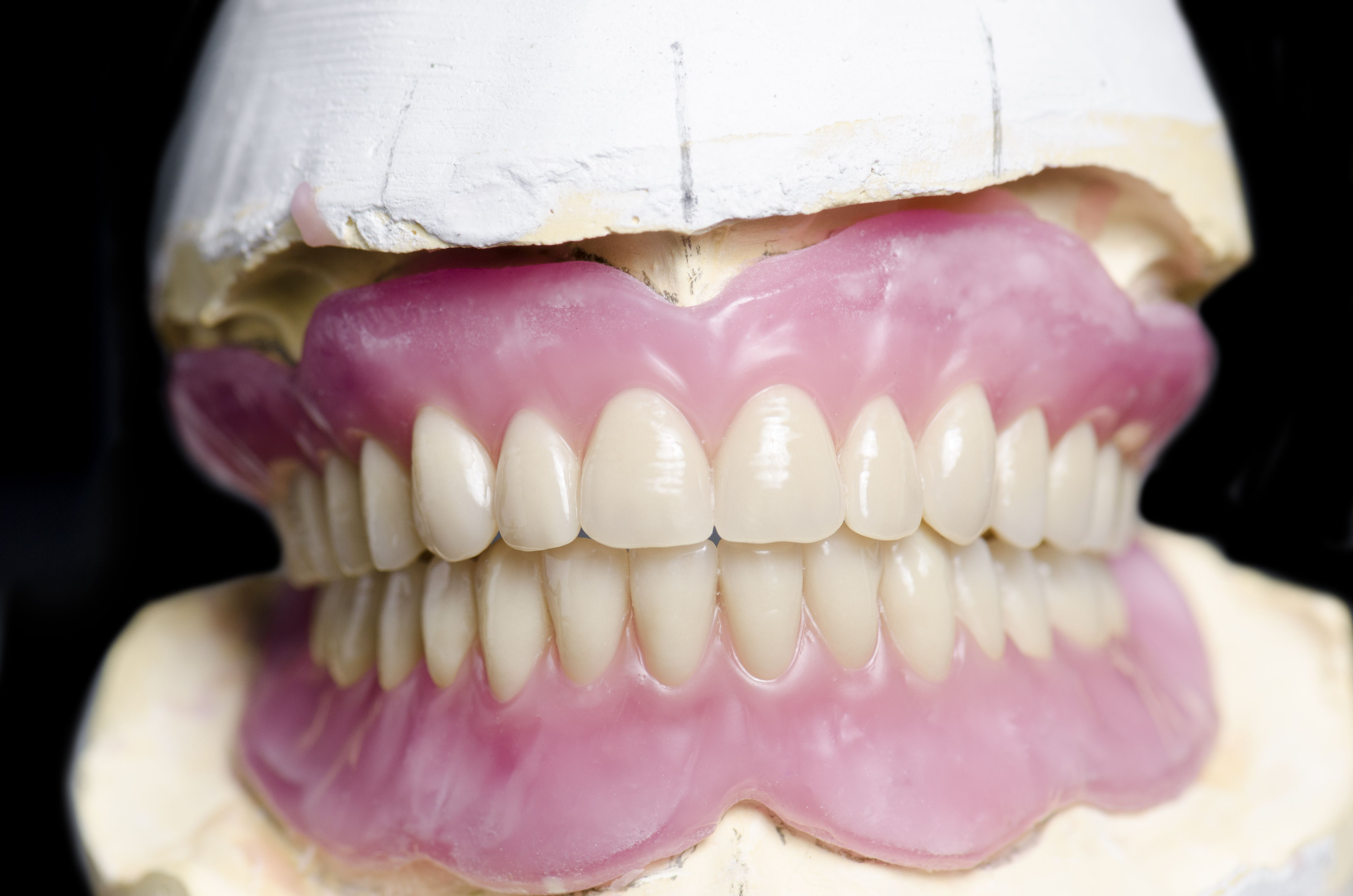 Overbite Overjet Differences