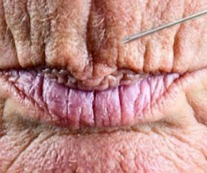 Avoid Botox: How To Remove Wrinkles & Lip Lines In 2 Minutes