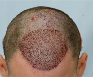 Man Finds Breakthrough Method to Regrow Hair (Do This Daily)