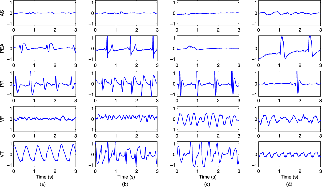 Figure 1 From Ecg Based Classification Of Resuscitation