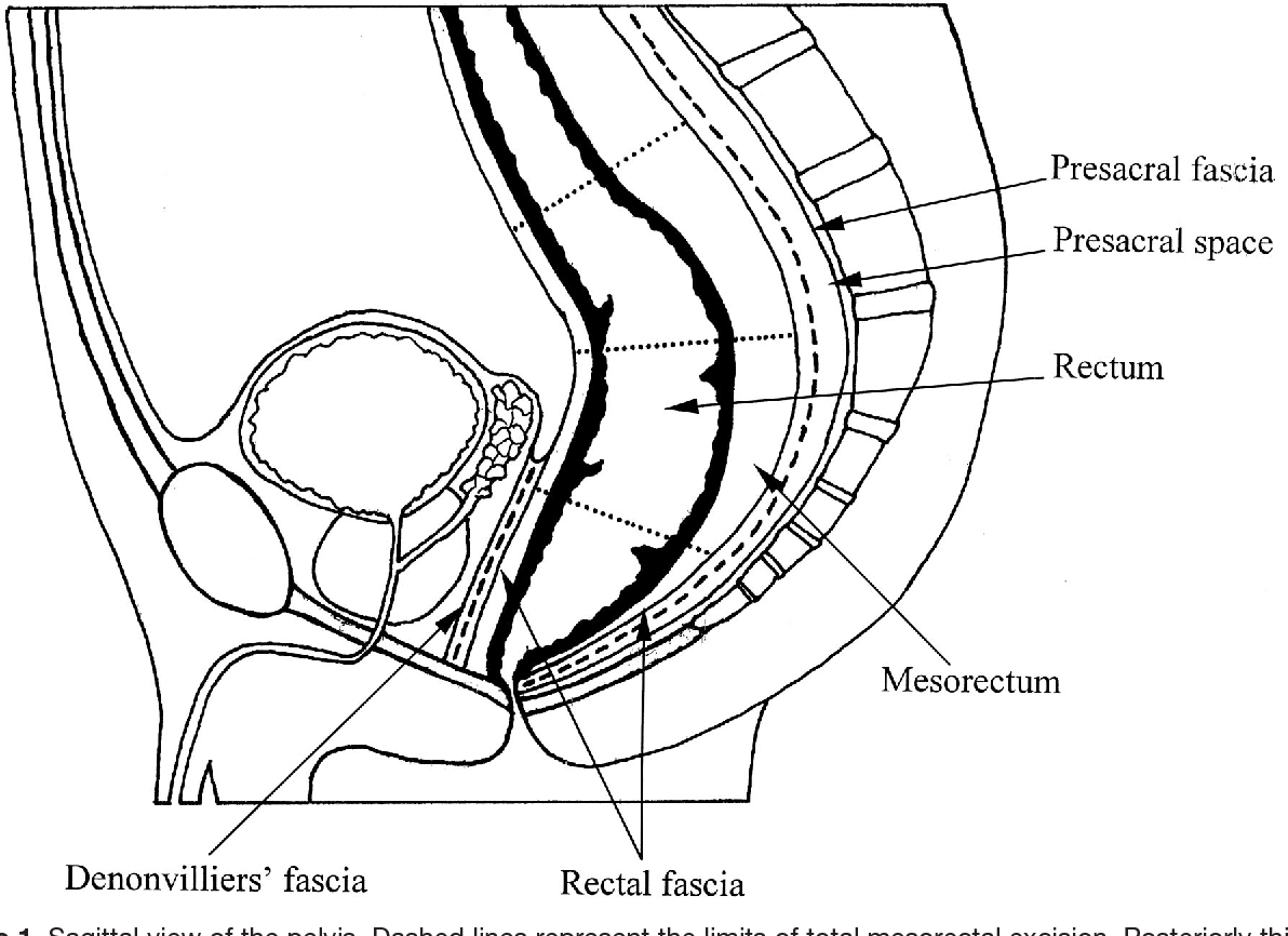 Figure 1 From Mesorectal Lymph Nodes Their Location And