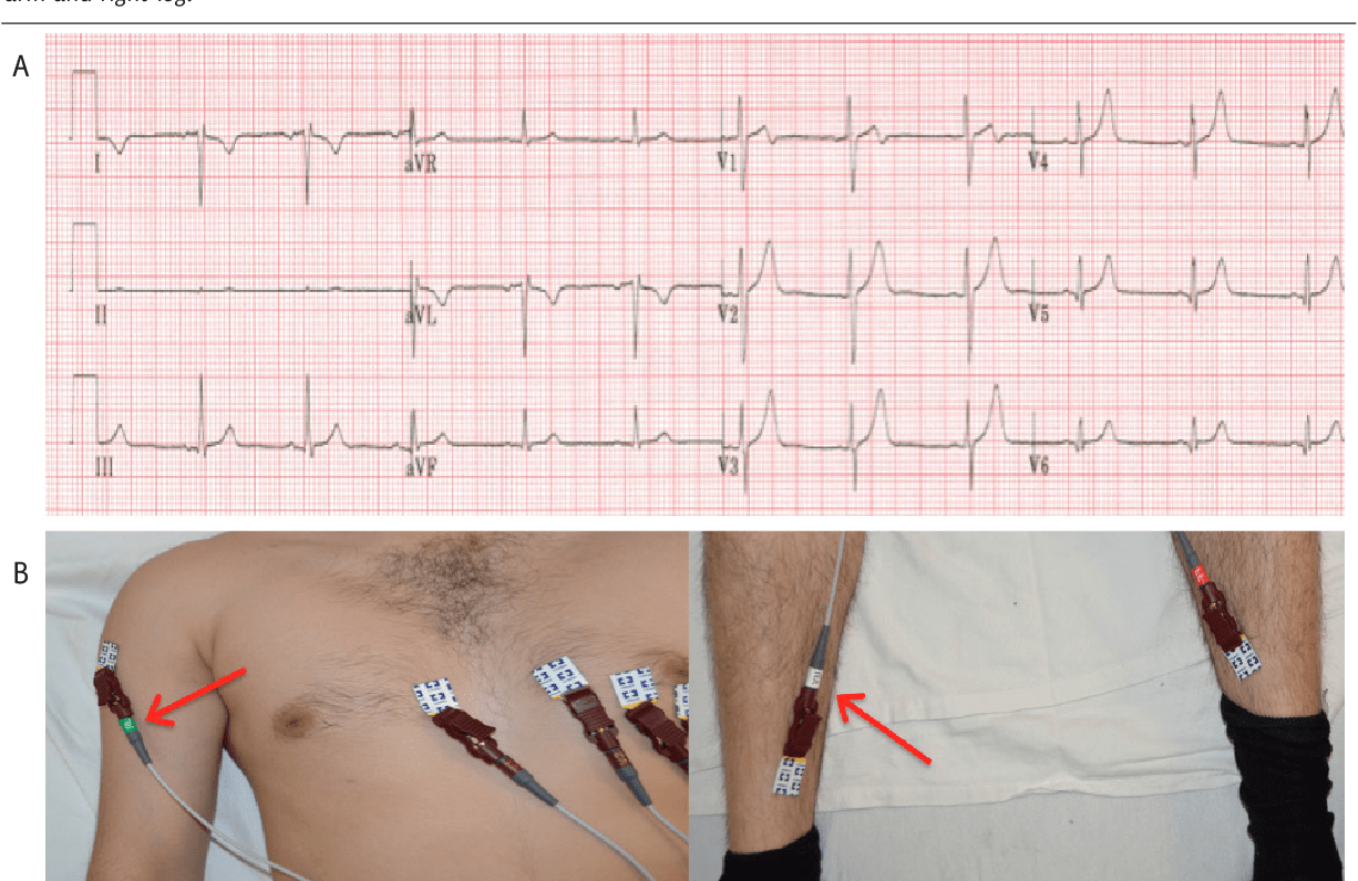 Figure 8 From Common Ecg Lead Placement Errors Part I