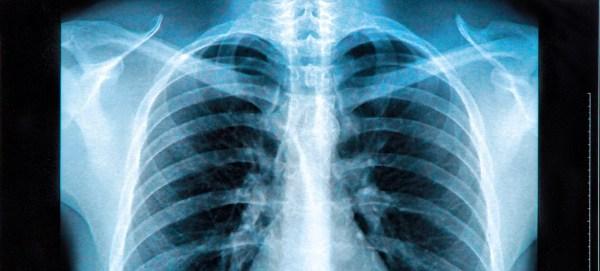 47 Radioactive X-Ray Facts and Trivia | Fact Retriever