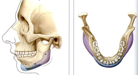 Implan Rahang- Global Estetik Dental Care