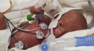 Un bébé né à 25 semaines, à qui on ne donnait que 50 % de chances de survie, se porte bien
