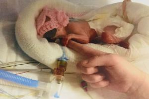 Les médecins disaient que ce bébé né à 24 semaines et 2 jours de grossesse ne marcherait jamais