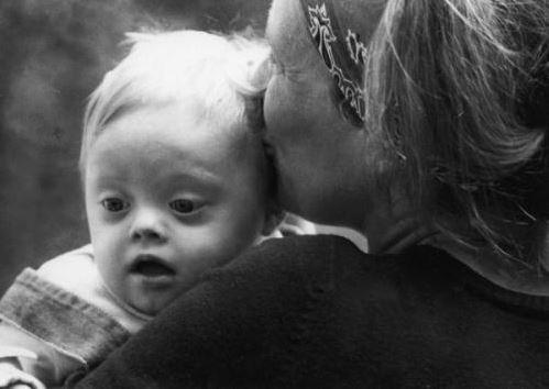 Juste avant la naissance, des médecins demandent à la mère si elle veut qu'on laisse mourir son bébé trisomique…
