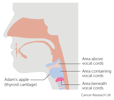 About Laryngeal Cancer