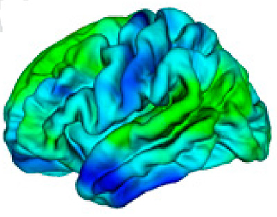 Global And China Brain Topography Industry 2014 Market ...