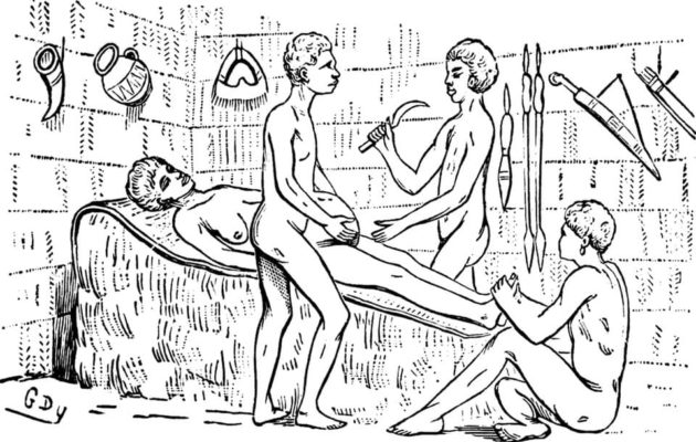 Caesarian Sections Were Performed In Africa Long Before They Were  Standardized Across The World | The African Exponent.