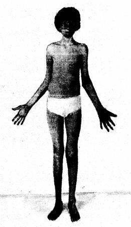 Синдром Марфана Причины и симптомы синдрома Марфана