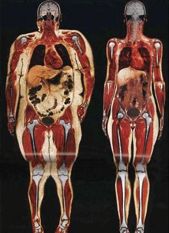 skeletal system same