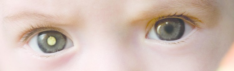 White-eye-in-photo-Childhood-Eye-Cancer-Trust-1024x312 Развитие ребенка: Особенности развития зрения детей.