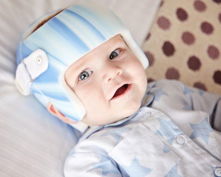 flat-head-syndrome-pillow-1024x819-1024x819 Плагиоцефалия или синдром плоской головы у детей.