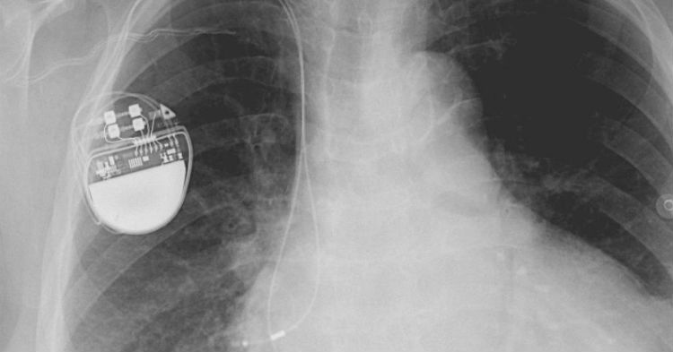 FDA Issues Dire Message For Anyone With A Pacemaker [WATCH]