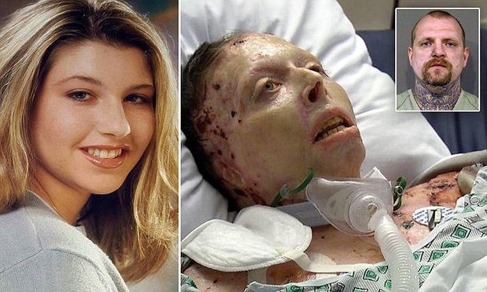 Boyfriend Who Set Girlfriend On Fire Gets Shocking Sentence