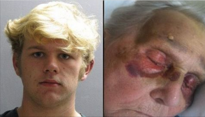 Teen Punk Punches Grandma In Face Over And Over – The Reason Why Has Police Furious