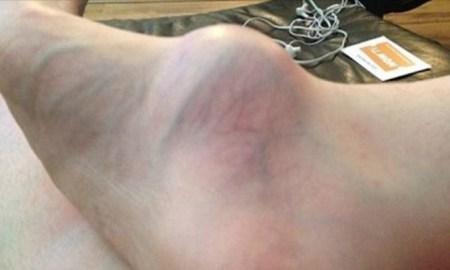 womans-swollen-foot