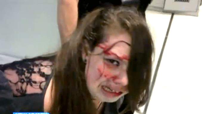 TSA Batters Disabled Woman On Her Way For Surgery on a Brain Tumor [VIDEO]